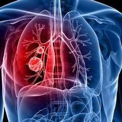 肺癌化療藥物