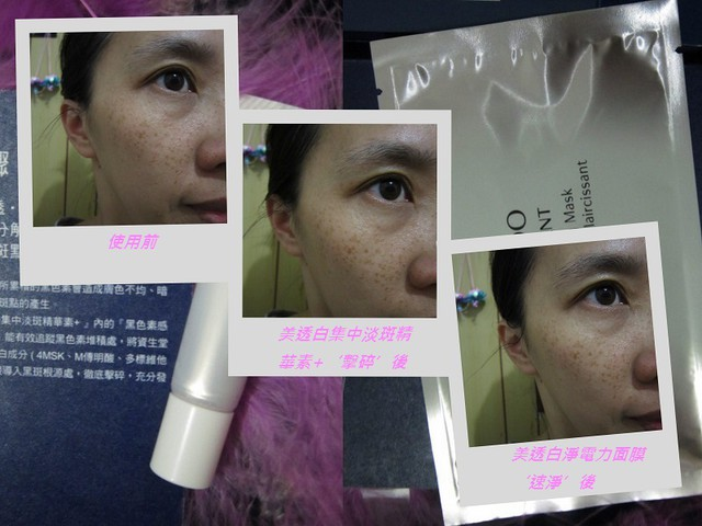 【Shiseido資生堂】美透白強力雙打組合 - 連袂出擊 黑色素無所遁形