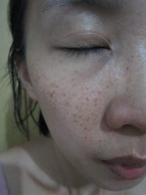 【DUMA本草度母】超青春粉刺露 - 草莓鼻OUT